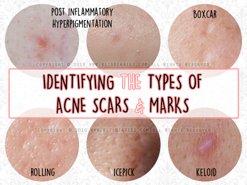 types of acne scars_1.png